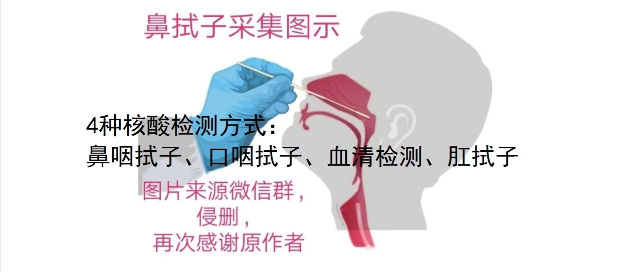 新冠疫情4种核酸检测采集方法:鼻咽拭子、口咽拭子、血清检测、肛拭子